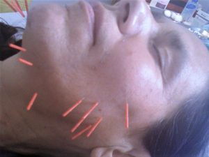 Facial Accupunture